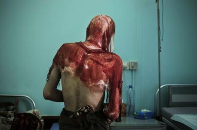 بين سجون الحوثيين والتحالف.. يمنيون تحت مقصلة الصراع