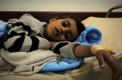 الصحة في اليمن.. موت بالرصاص وآخر بالمرض