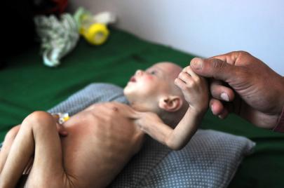 ابن سلمان يستخدم سلاح المجاعة لتدمير اليمن.. نازيّة جديدة والجوقة تصفّق!