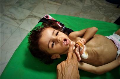 موت أطفال اليمن.. كل 10 دقائق ضحية