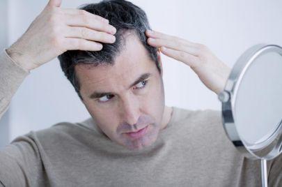 معلومات مهمة عن عملية زراعة الشعر في تركيا